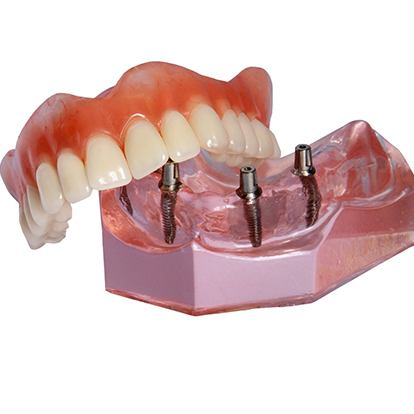 Model of an implant-retained denture.