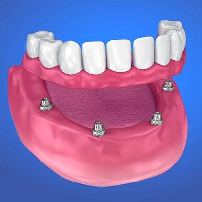 Digital image of an implant-retained denture.