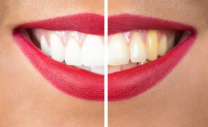 Ashamed of a stained smile? Brighten it with in-office or at-home teeth whitening from your cosmetic dentists in Oklahoma City, Drs. Colin and Jon Holman.