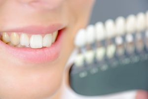 woman smiling with discolored teeth