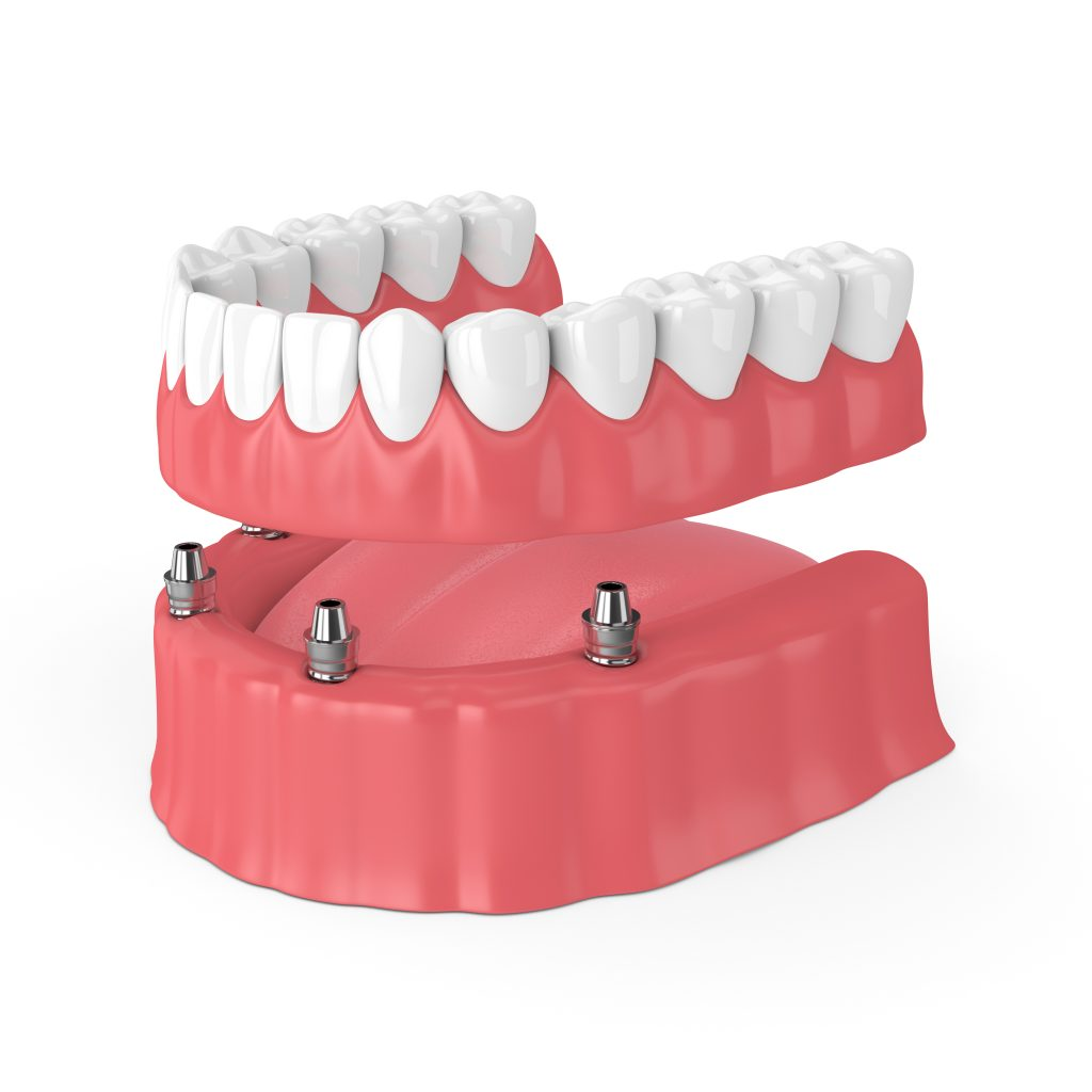 Model of an implant-retained denture