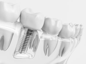 Dental implant alongside teeth